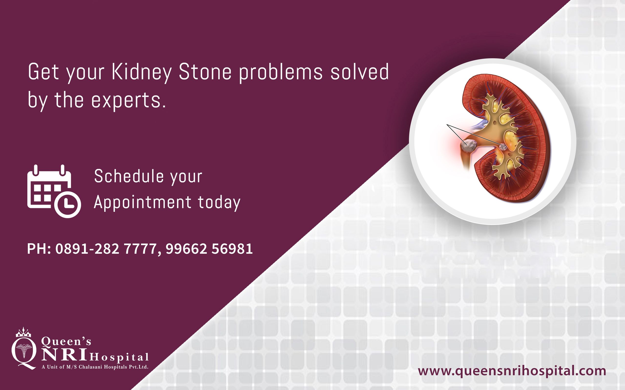 Get your #Kidney stone problems solved by the Experts. For more info ...