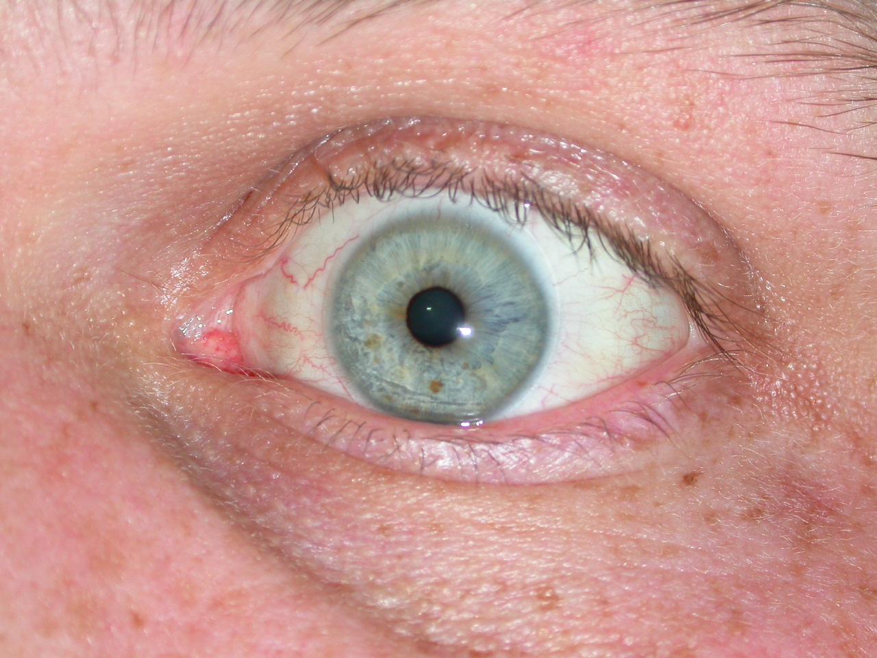 Eye photo