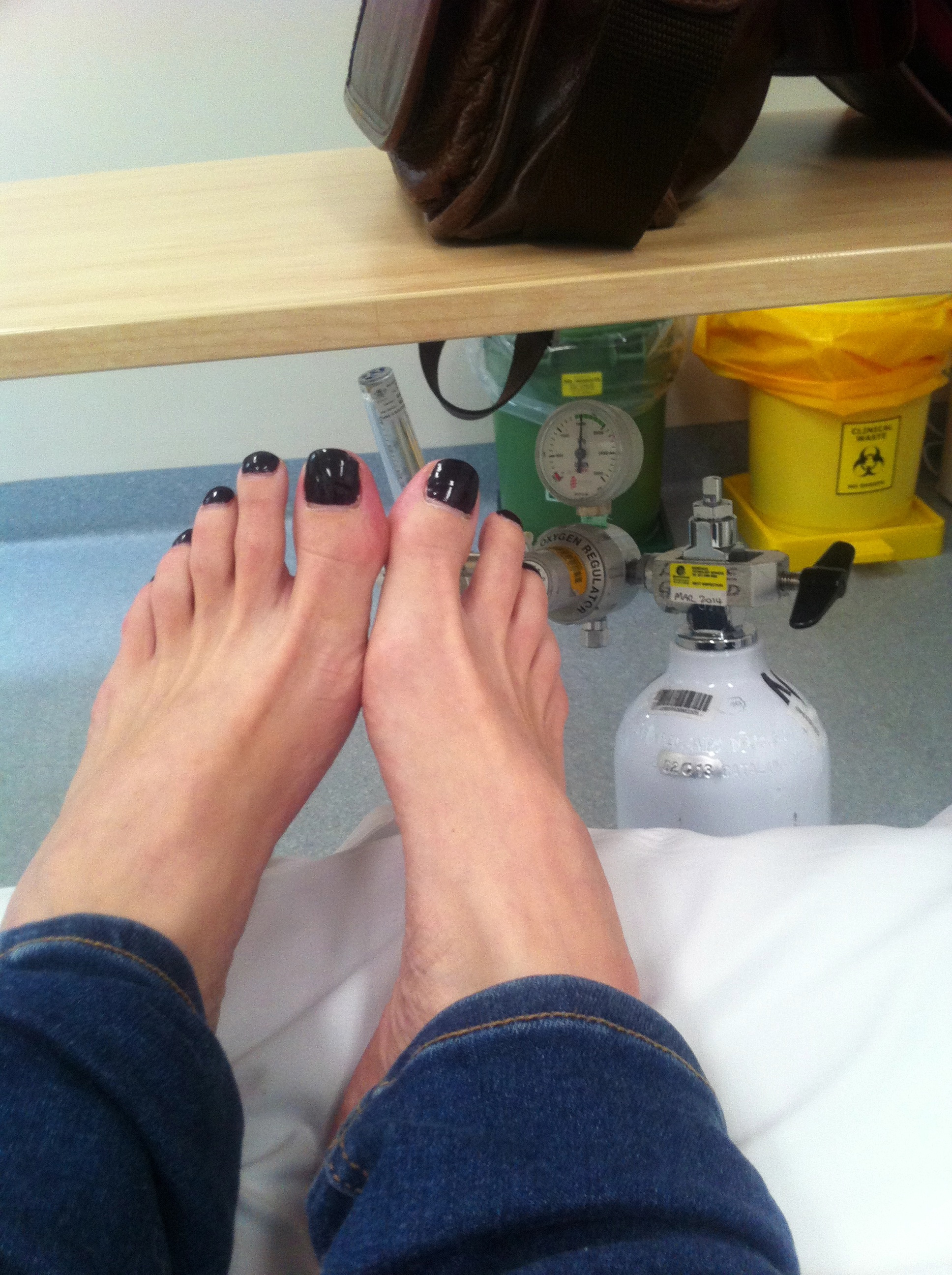 Feet, jesus, spooning dogs, goats and Birkenstocks – bruises you can ...