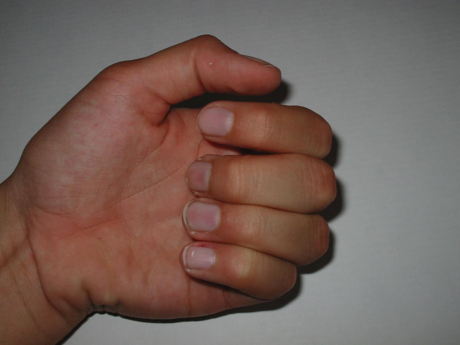 Hand, Bend, Fingers, Five, HQ Photo