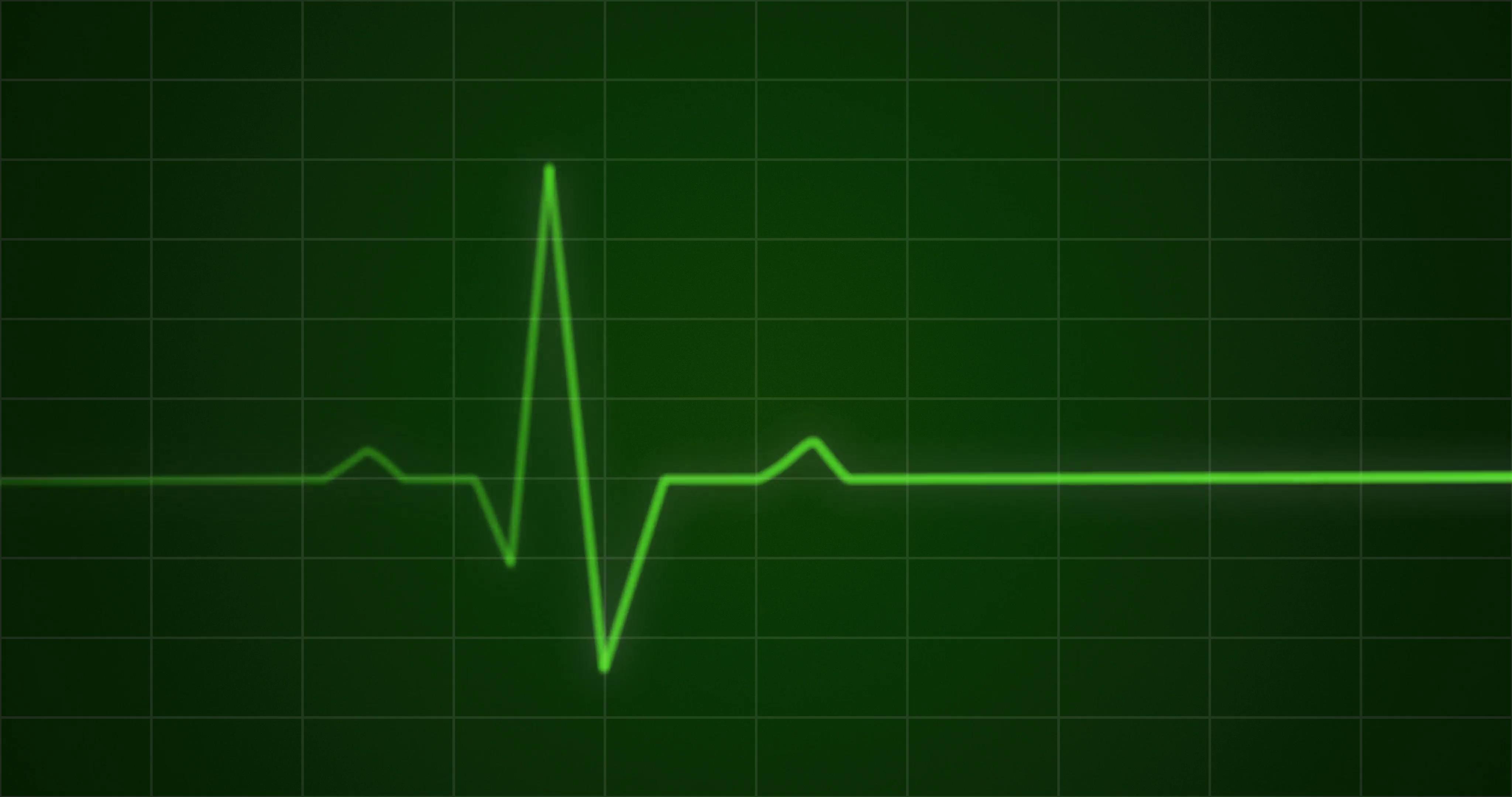 Concept animation of an ECG or EKG heartbeat cardiogram on a green ...