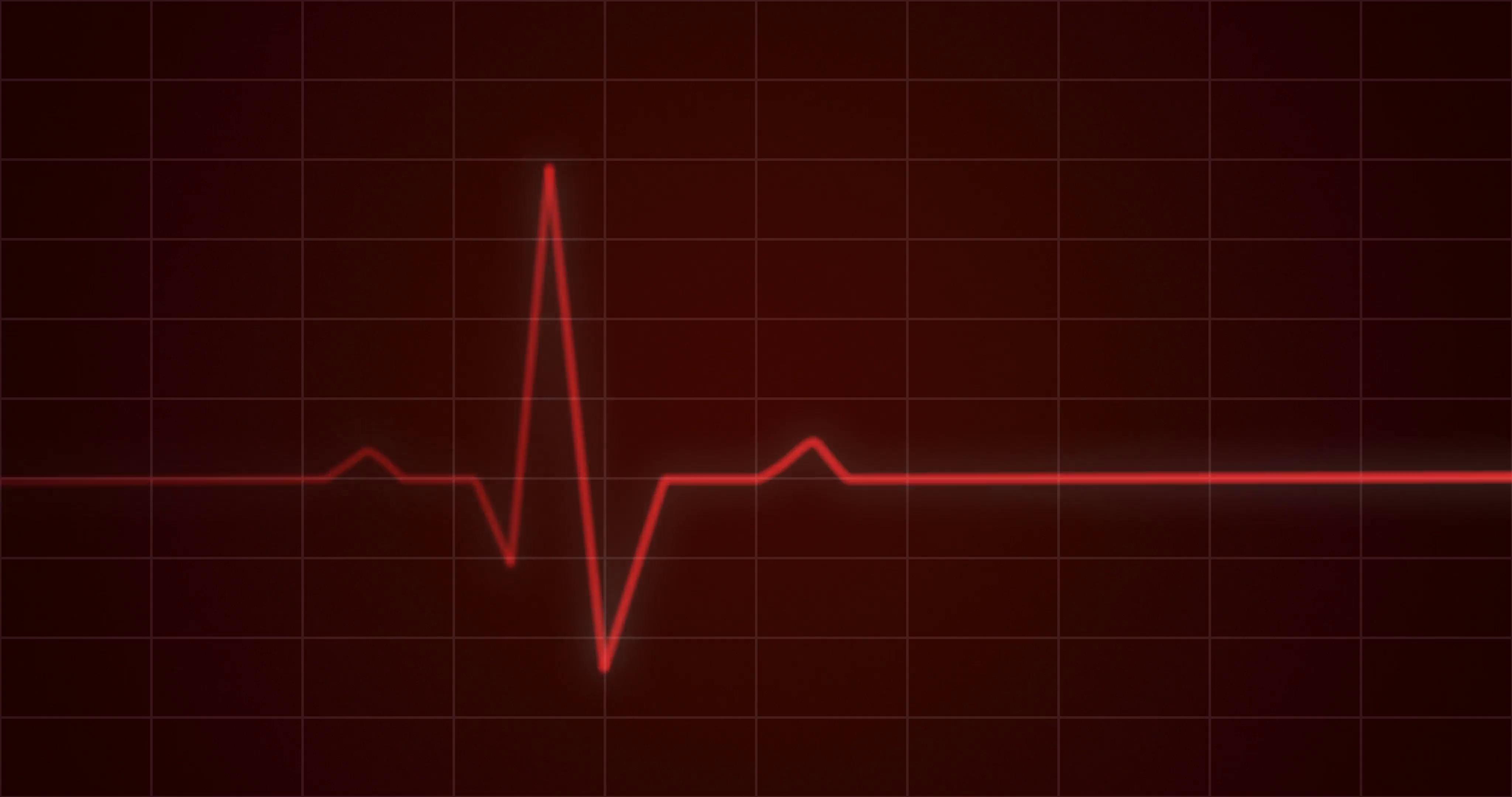 Conceptual animation illustrating an ECG or EKG heartbeat cardiogram ...