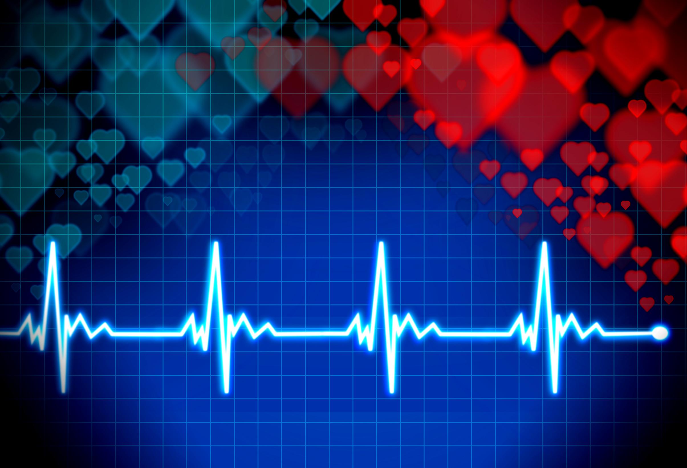 Heartbeat Monitor Concept, Molded, Pulse, Procedure, Pressure, HQ Photo