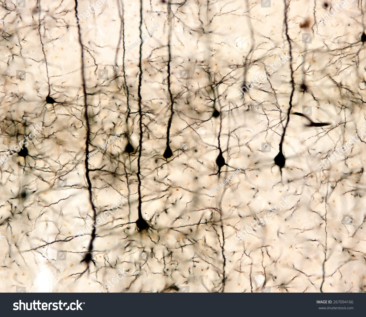 Pyramidal Neurons Cerebral Cortex Impregnated Golgi Stock Photo ...