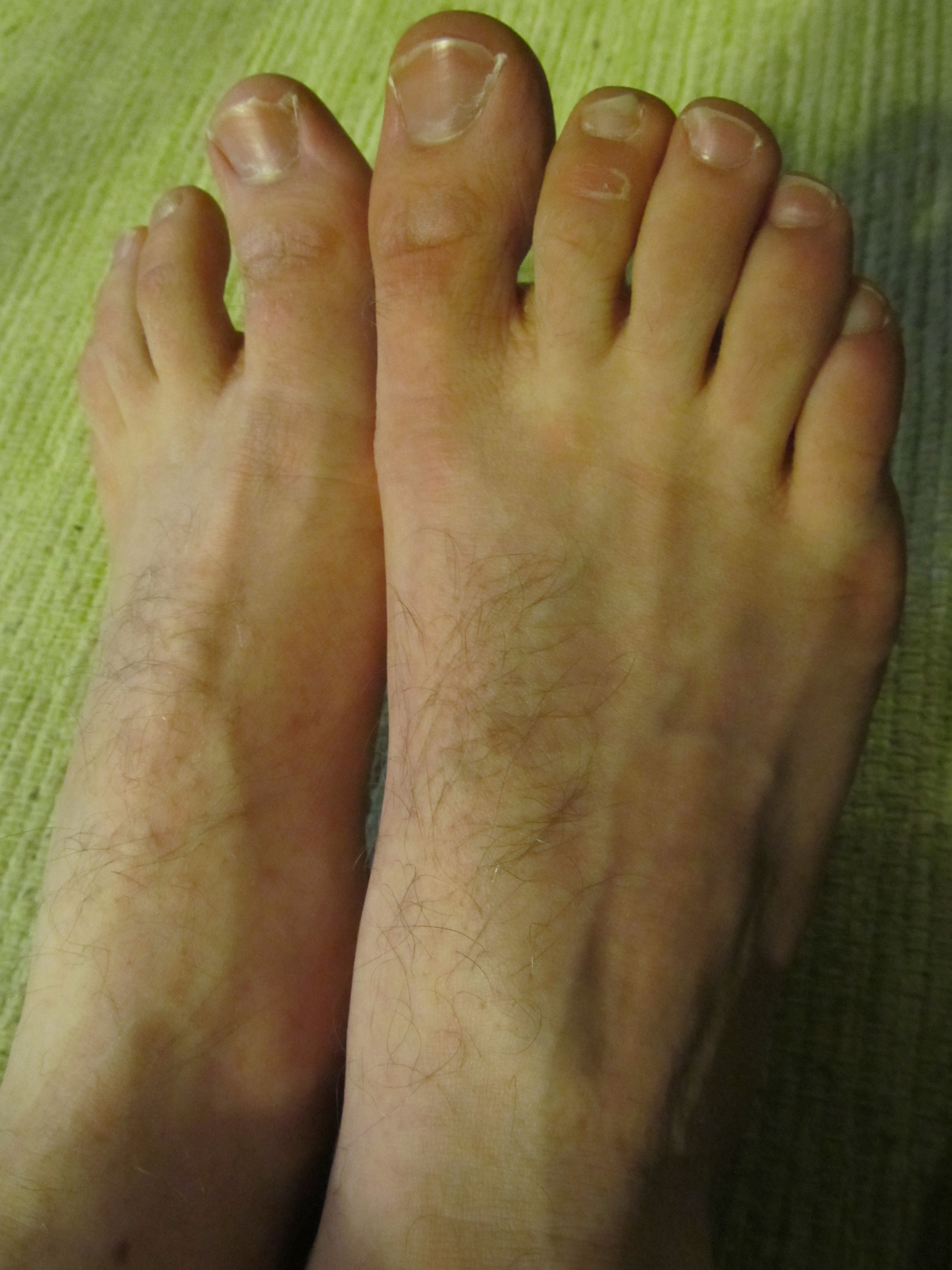 Day 171: Make my feet pretty | Novice Du Jour