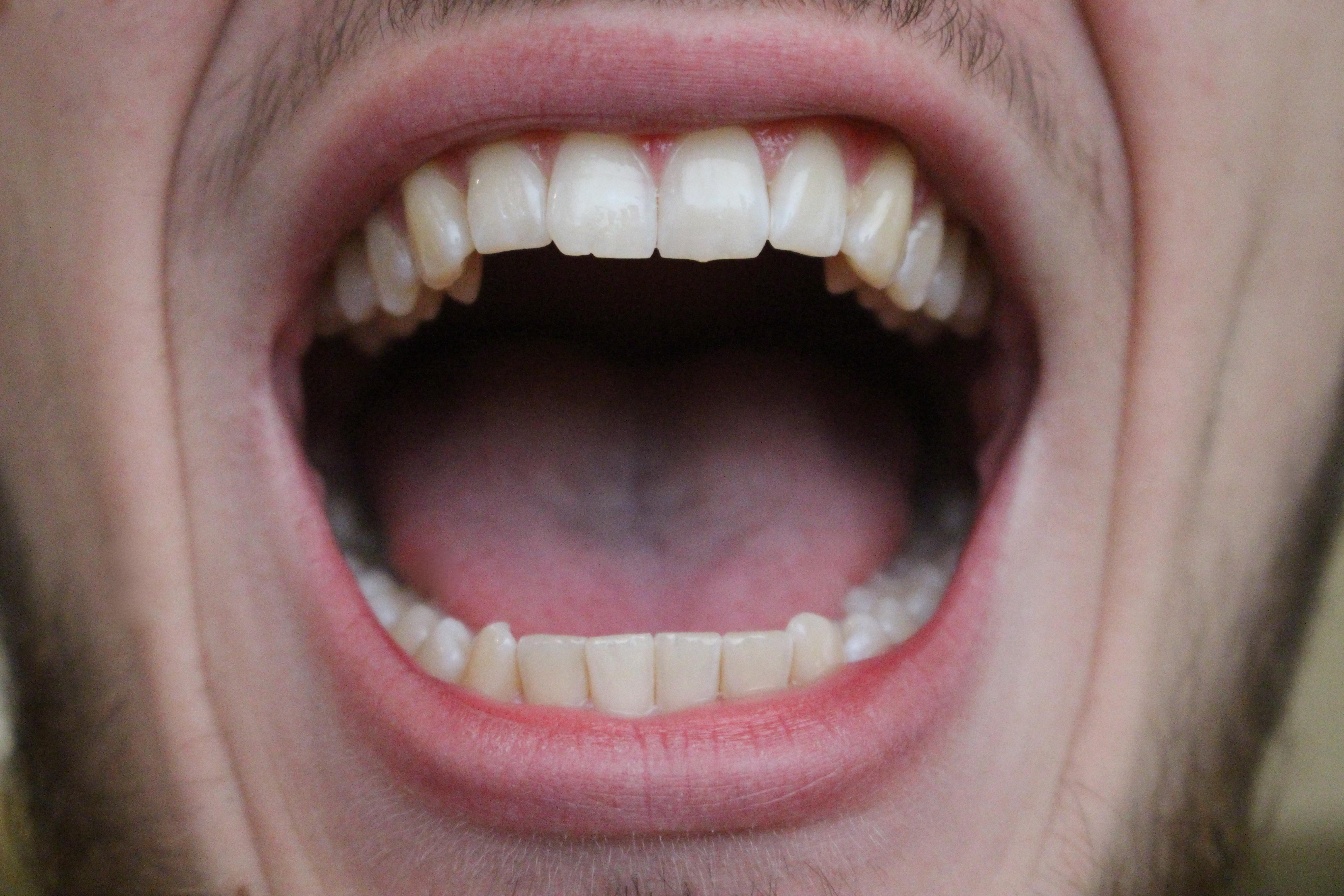 Free stock photo - Open Mouth - StockyPics