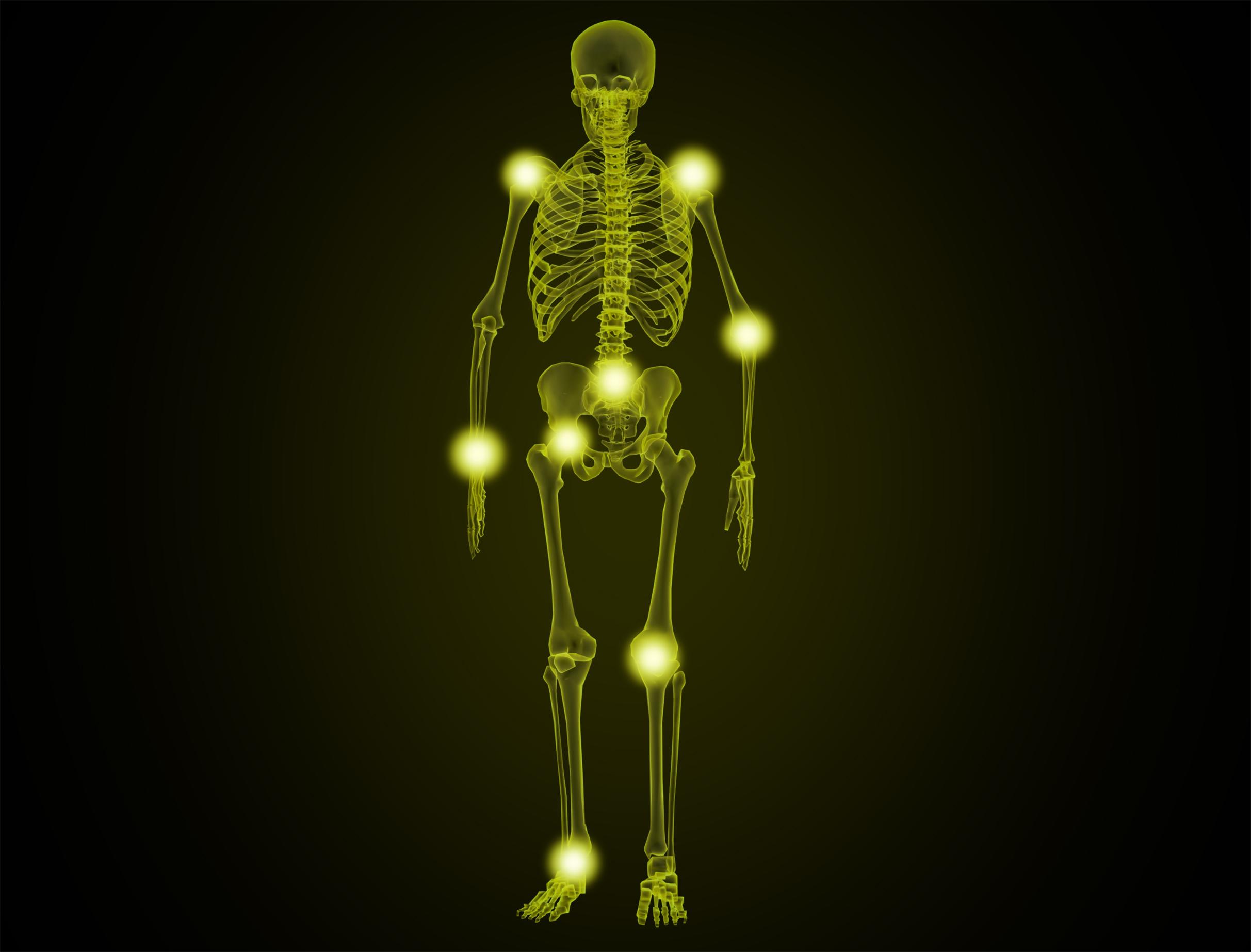 Painful joints - illustration photo