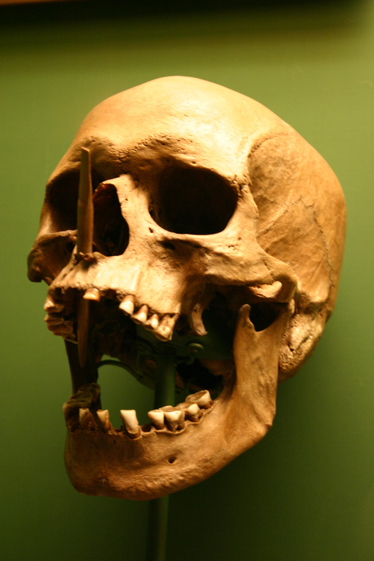 Skull, Old, Human, Cranium, Bone, HQ Photo