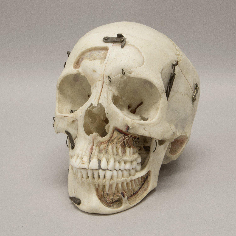 Real Human Skull For Sale – Skulls Unlimited International, Inc.