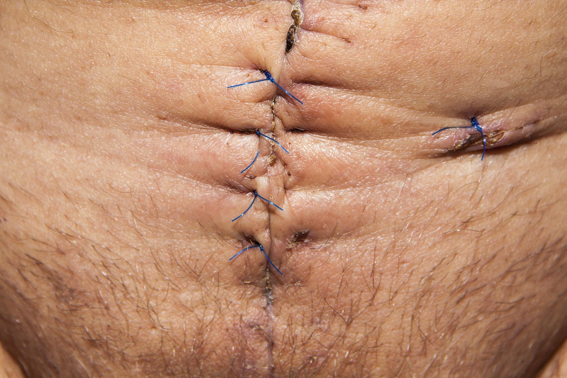 Stitched Stomach, Doctors, Health, Hospital, Human, HQ Photo