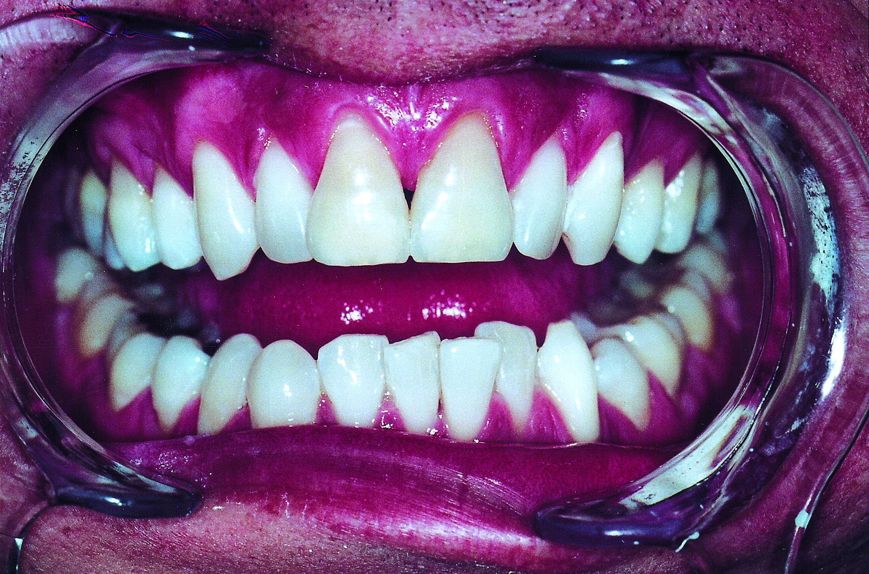 Teeth photo