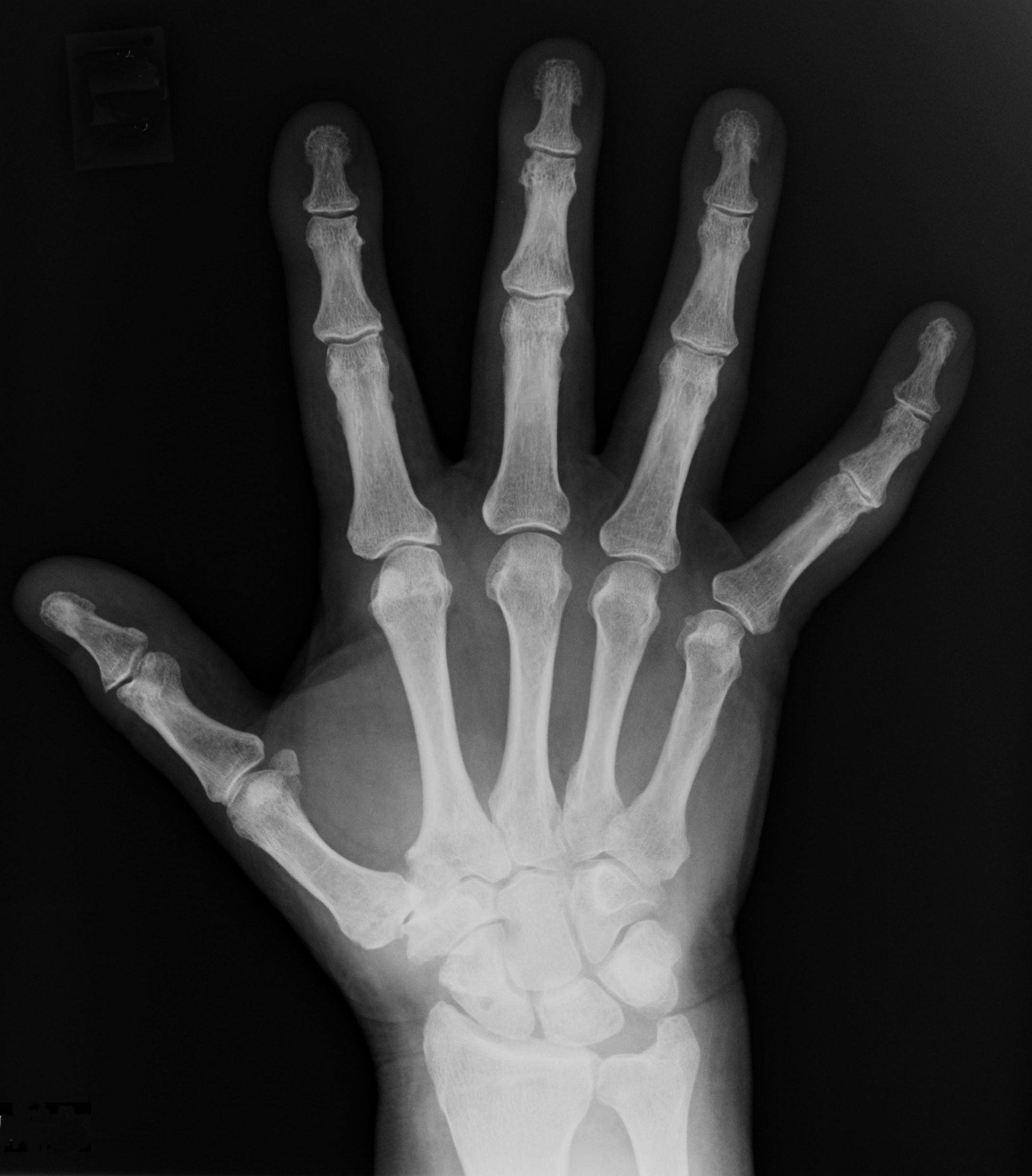 Free Photo Xray Human X Ray X Free Download Jooinn Here you can explore hq hand xray transparent illustrations, icons and clipart with filter setting like size, type, color etc. free photo xray human x ray x