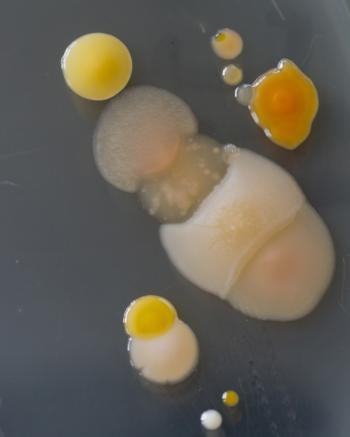 Bacteria growing on a Perti dish