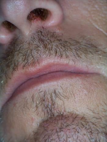Beard and lips