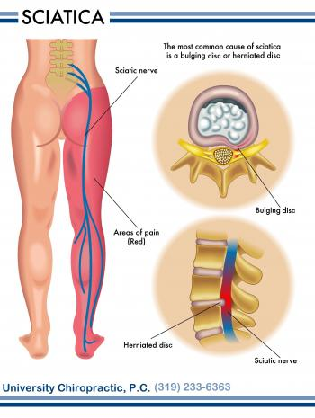 Chronic Pain Spots - Painful Joints in the Body