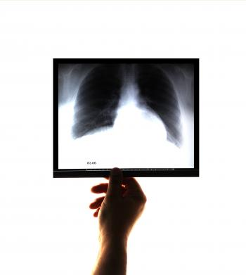 Doctor examining and holding an x-ray image in his hand