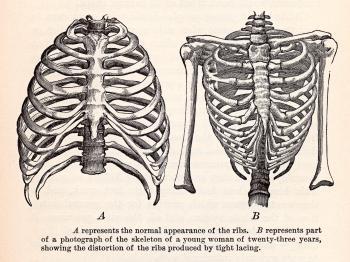 Human Ribcages, Circa 1911