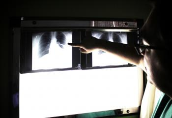 Medical doctor pointing to an x-ray image