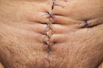 Stitched Stomach