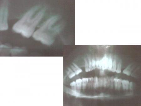 Dental ultrasound